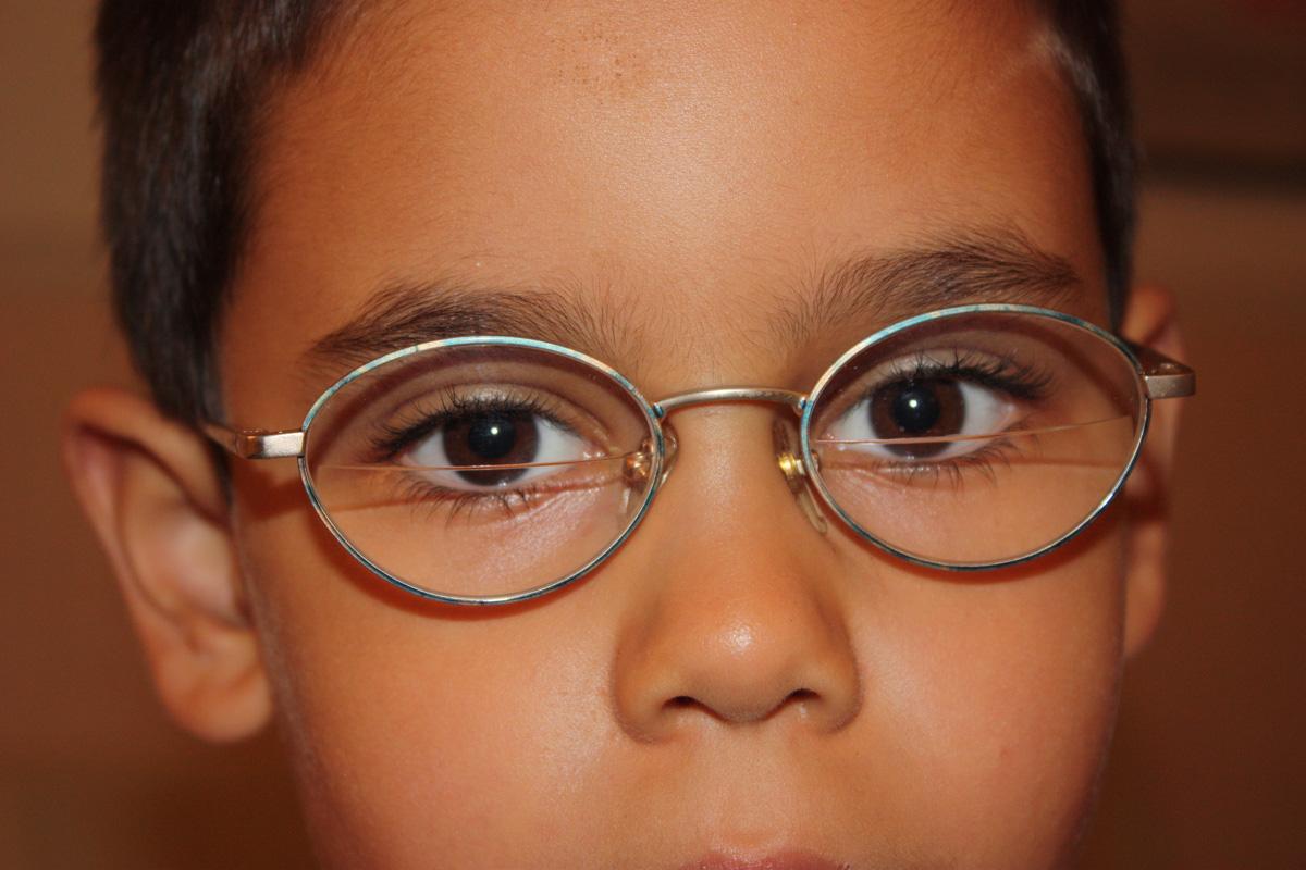 A kancsalság (strabismus) - Szakmai Informáciok - Pirinyó Szemészet ... 23a01ae70b