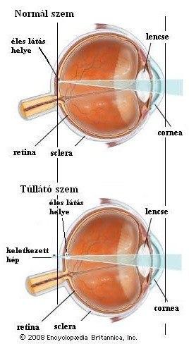 a látás mínusz 3 rossz illuzórikus látás az